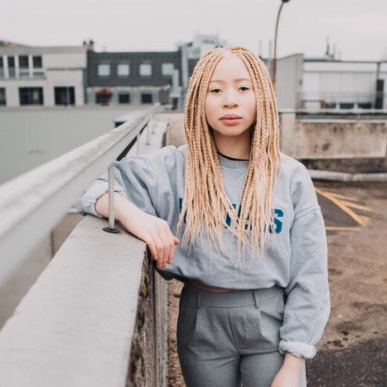 Luisa Löffel Afro Albinismus